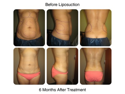 liposuction before and after (5)