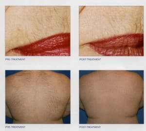 Laser Hair Removal Before & Afters