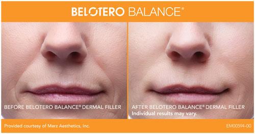 Belotero Balance