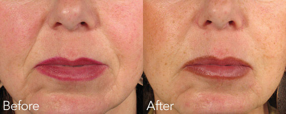 Dermal filler Belotero - Better than Stephanie Hamilton's the OGEE