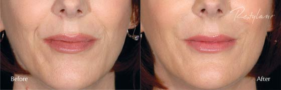 restylane before after 2