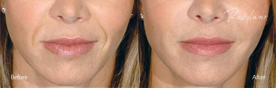 restylane before after 3