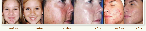SilkPeel Before & After