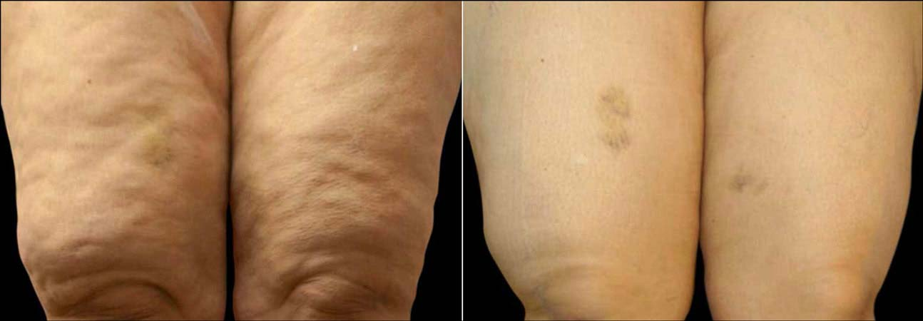 Exilis Ultra Before & After - Cellulite on Legs