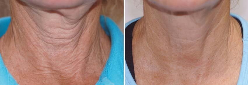 exilis ultra before and after new radiance fort lauderdale cosmetic center