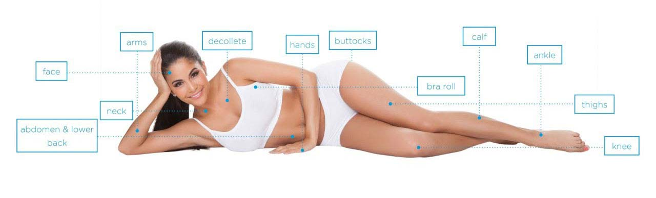 exilis treatment areas