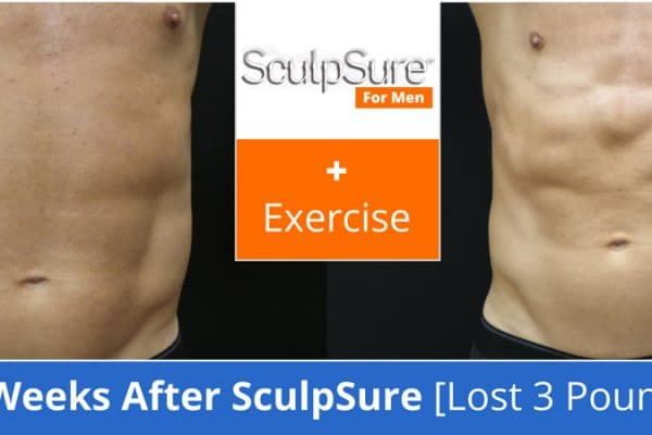 sculpsure plus exercise before and after