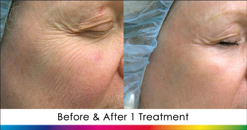 Ablative Laser Skin Rejuvenation New Radiance Cosmetic Center Fort Lauderdale
