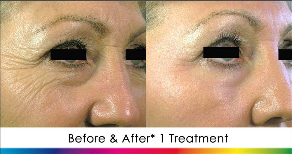 Laser Skin Resurfacing Before & After (ablative)