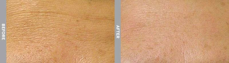 Hydra Facial Before & After Wrinkles Fort Lauderdale