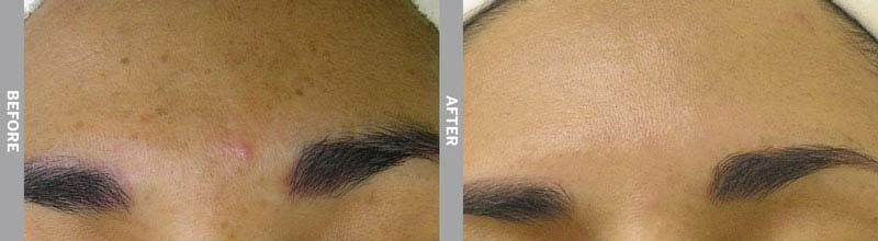 HydraFacial Before & After Hyper Pigmentation
