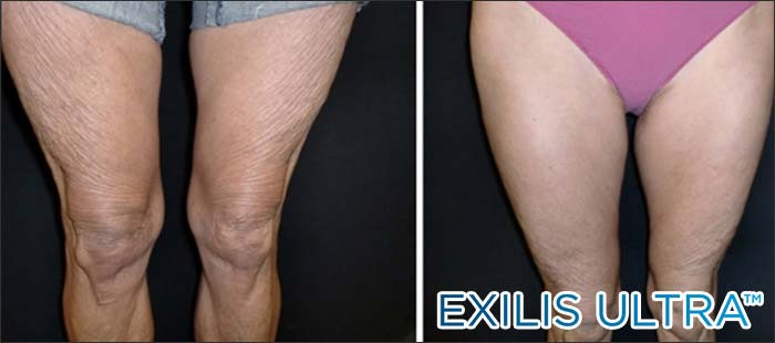 Crepey legs before and after New Radiance Fort Lauderdale