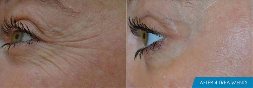 Exilis Ultra Eyes Before & After New Radiance Fort Lauderdale